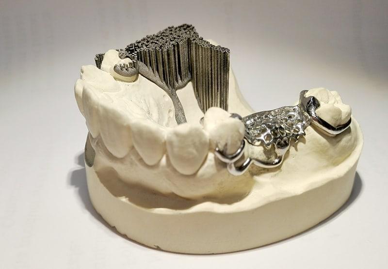 3D nyomtatott fémváz
