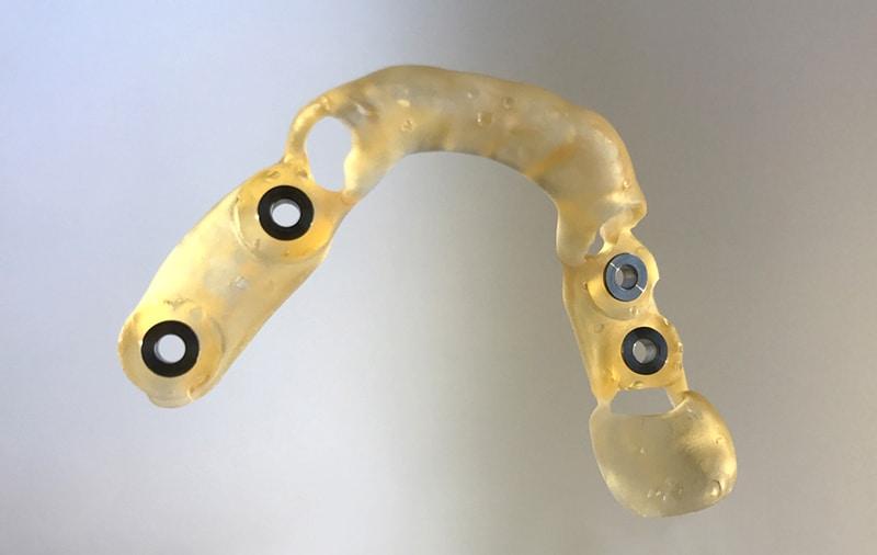 Form 2-vel nyomtatott fogászati fúrósablon